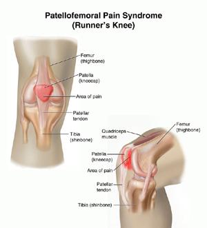 Chondromalacia or Runner's Knee